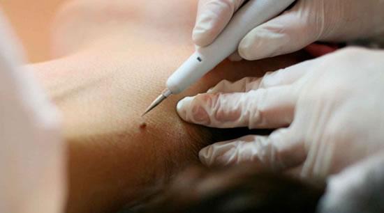 Curso de Dermatologia Cirurgica Curitiba